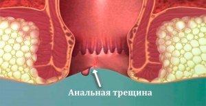 Средства лечения послеоперационной анальной трещины