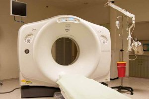 Плоскоклеточный рак шейки матки неороговевающий, ороговевающий: прогноз, лечение в Израиле